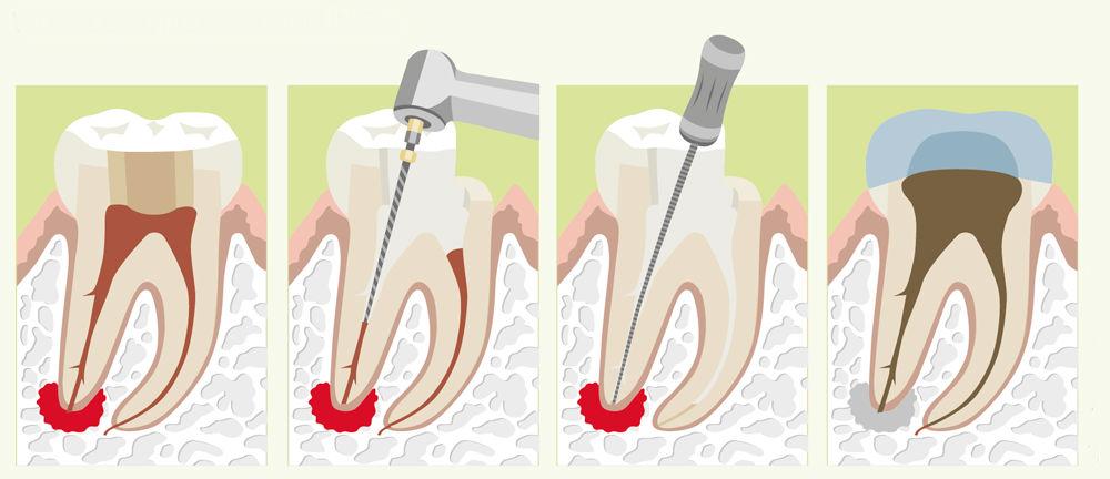 лечение гранулемы зуба с помощью медикаментов