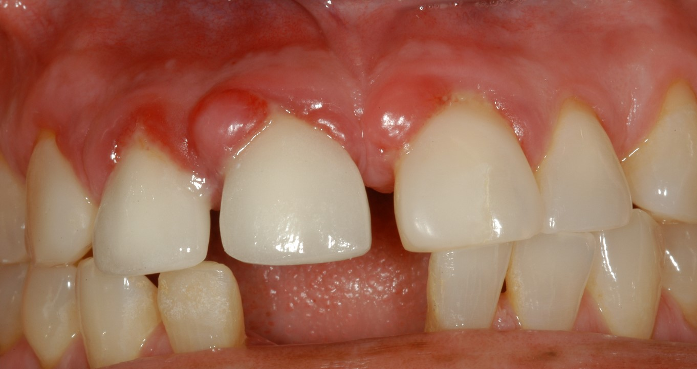 гранулема зуба фото 3